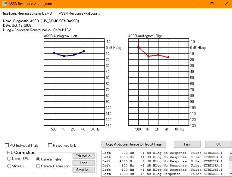 ASSR response audiogram window showing the detected thresholds corrected to HL