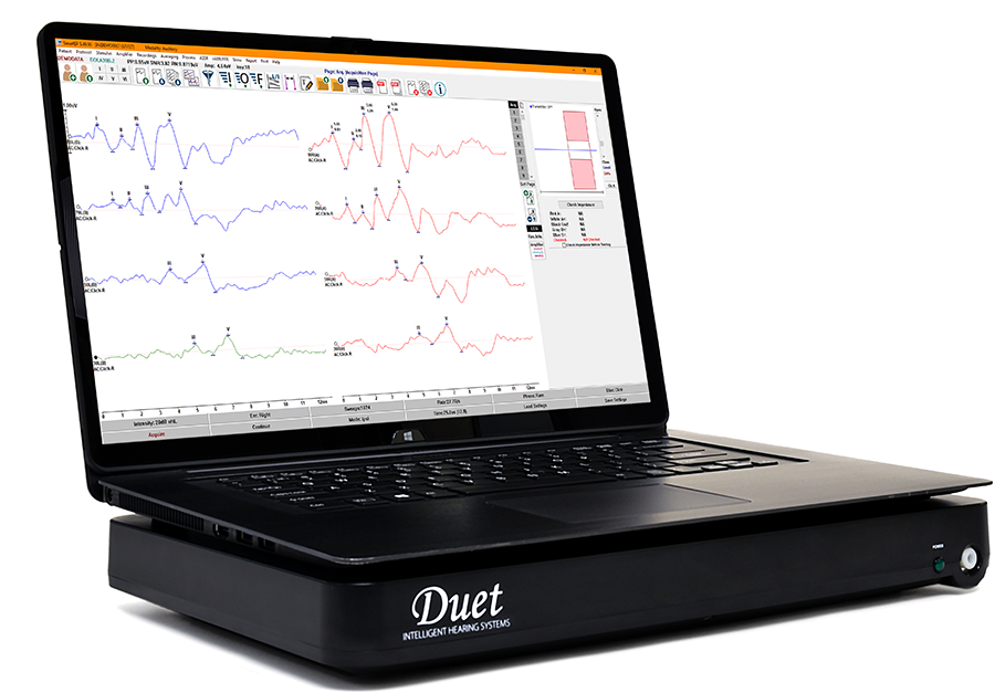 Duet platform with Laptop, showing SmartEP with AEP responses (ABR)