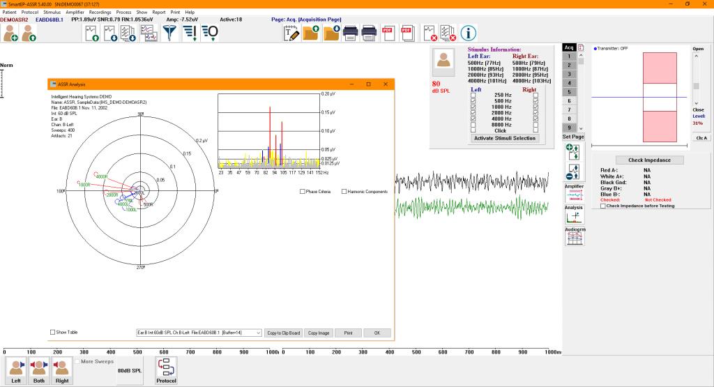 SmartEP-ASSR showing the ASSR response analysis