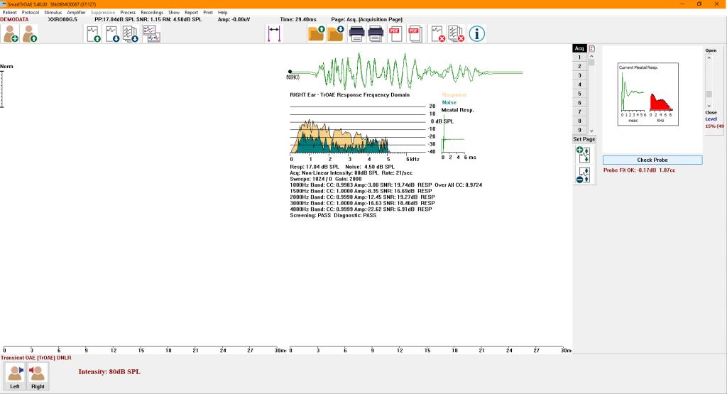 SmartTrOAE window showing a Transient Evoked OAE response, TEOAE.